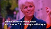 Mimie Mathy confie avoir eu recours à la chirurgie esthétique et dévoile quelle opération elle a faite