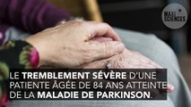 Un traitement contre les tremblements de Parkinson