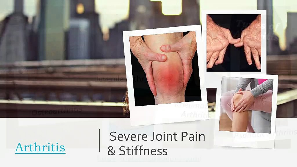 Get Relief from Arthritis – Use Natural CBD Oil Pro