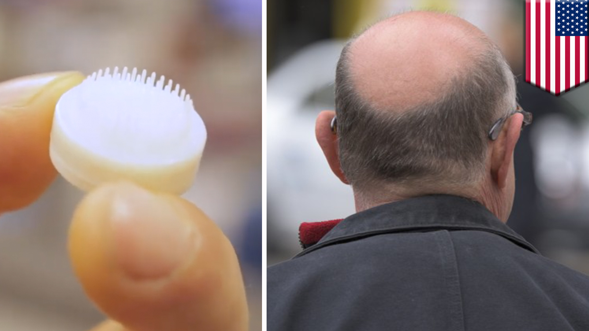 Scientists use  3D printing to make hair farms for human hair