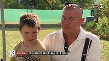 Charente-Maritime : des enfants brûlés par la sève de figuiers