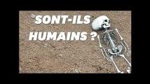 Ces humains se faisaient artificiellement déformer le crâne il y a 5000 ans