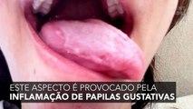 Língua geográfica: uma doença misteriosa que transforma a superfície da língua