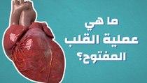 ما هي عملية القلب المفتوح؟