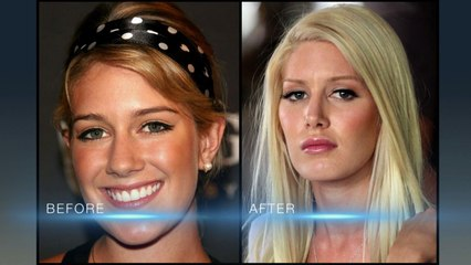 "The Hills : New Beginnings S.1 E.03 ""Les changements"""