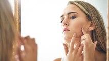 10 trucs (insoupçonnés) pour soigner efficacement son acné