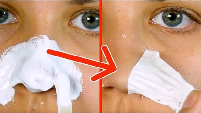 Say Goodbye To Blackheads With A Simple Home Remedy That Works Right Away!