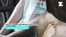 Mi activismo en redes sociales: The Skin Project