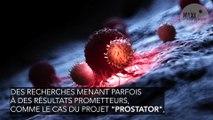 Un nouveau système de dépistage du cancer de la prostate