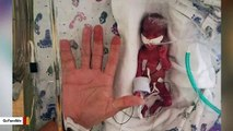 Woman Gives Birth To Baby Weighing Just 13 Ounces