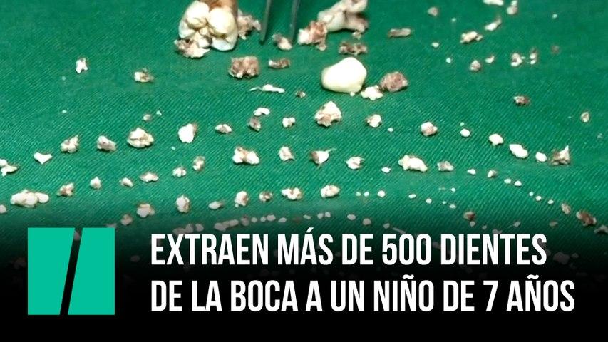 Extraen más de 500 dientes de la boca a un niño de 7 años