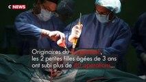 Après 30 heures d'opération, 2 fillettes siamoises reliées par la tête ont été séparées