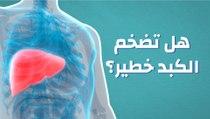هل تضخم الكبد خطير؟