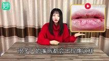 【Nursing lips】嘴唇干裂脱皮不用怕,蜂蜜加点这个一涂抹,一辈子都不再干裂
