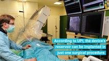 Breakthrough Cardiac Device Prevents Blood Vessel Scarring