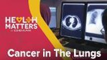 Health Matters with Dishen Kumar: Cancer in The Lungs