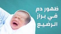 ظهور دم في براز الرضيع