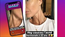 Caroline Receveur : elle dévoile son acné sur Instagram