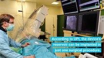 Breakthrough Cardiac Device Prevents Blood Vessel Scarring - -  (4)