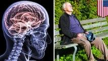 Studi menyatakan sering tidur siang pertanda Alzheimer - TomoNews