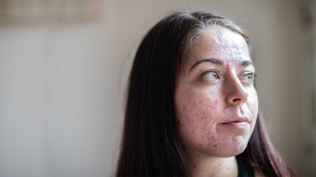 Doctors Told Me I Had The Worst Acne They'd Ever Seen
