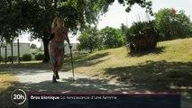 Prothèse bionique : la première Française à recevoir une prothèse bionique de bras doit apprendre à le maîtriser