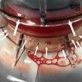 Don de plasma : les défaillances des machines Haemonetics