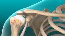 Biceps Tendon Tear (at the Shoulder)