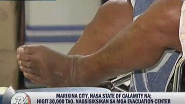 Diseases spreading in Marikina evacuation centers