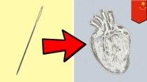 離奇!11歲女孩心臟被長針刺入 原因不明