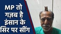 Madhyapradesh में इंसान के head पर निकला सींग, doctor हुए हैरान । वनइंडिया हिंदी