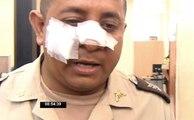 Policía agredido por evitar que sujeto golpee a su madre por un dólar