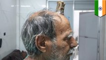 Four-inch 'devil horn' removed from Indian man's head