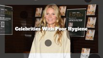 These Celebrities Have Poor Hygiene