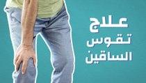 علاج تقوس الساقين