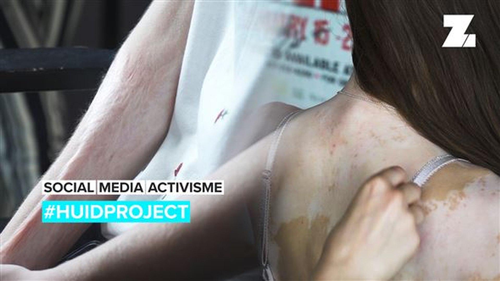 Social Media Activism: #ProjectTheSkin