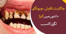 Chocolate, Sweets and Chewing Gums are the main cause of teeth infection