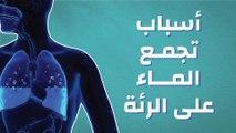أسباب تجمع الماء على الرئة