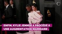 Kylie Jenner métamorphosée : ses opérations de chirurgie estimées à plus de 30 000 euros