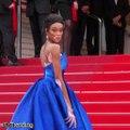 Winnie Harlow, la top model con vitiligo que le dio otro color a las pasarelas