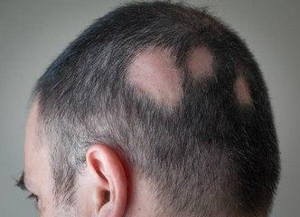 Was ist Alopecia?