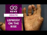Leprosy On The Rise