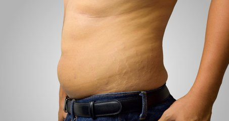¿Los hombres sufren de celulitis?
