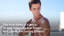 This Viral Photo of a Man's 16-Inch Melanoma Scar Proves Skin Cancer Has Lasting Effects