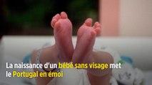 Portugal : la naissance d'un bébé sans visage met le pays en émoi