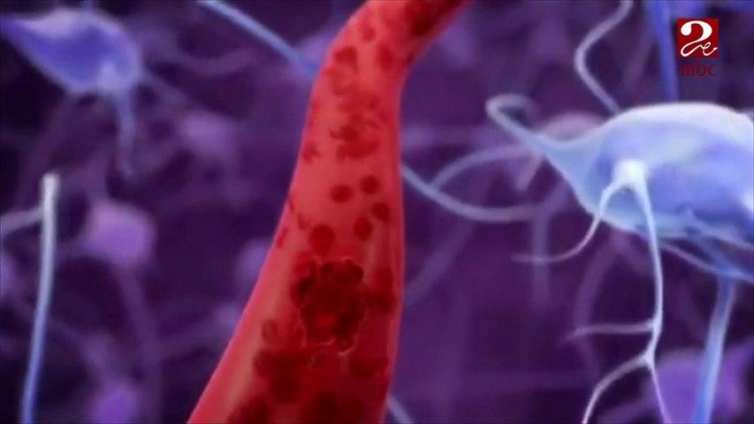 فيديو توضيحي لجلطة المخ وكيفية الوقاية منها