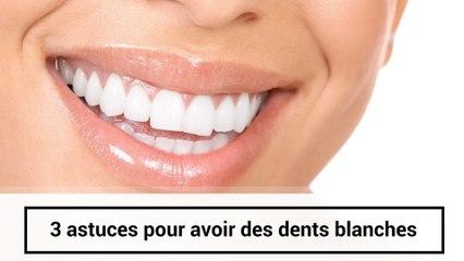 3 astuces pour avoir les dents blanches