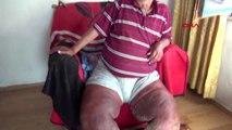 Bacaklarını kurtlar yiyen talihsiz vatandaş, yetkililerden yardım istiyor