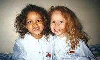 Ces jumelles sont célèbres pour leur couleur de peau différente. les voici à 21 ans... Magnifiques