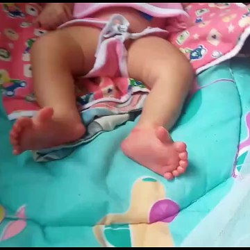 Unique baby born in India with 26 digits on her hands and feet